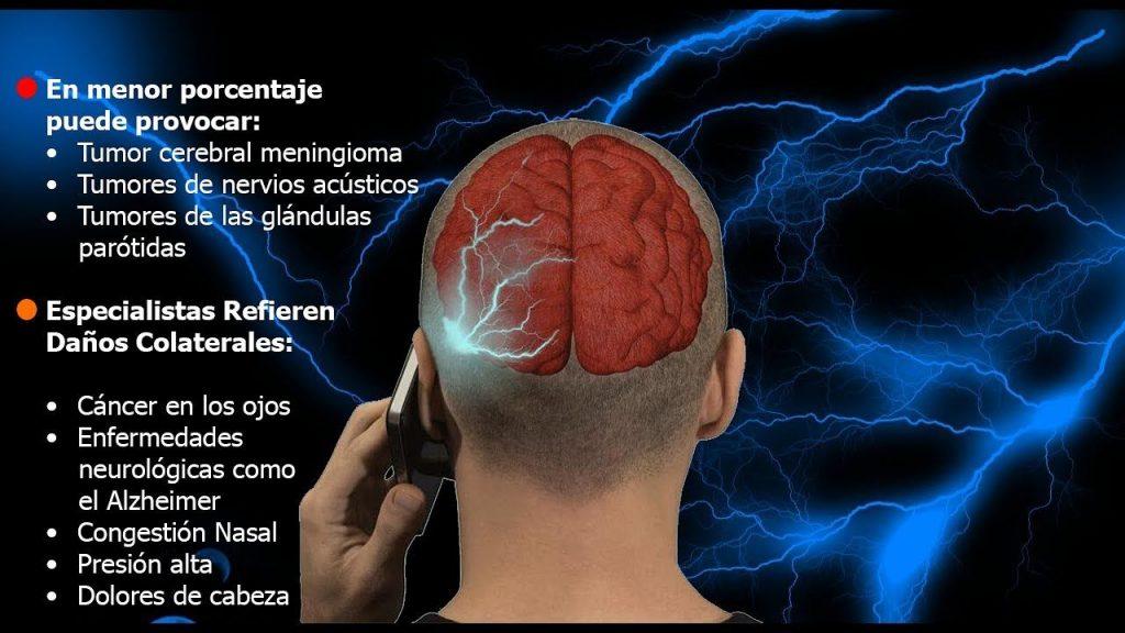sintomas en tumor cerebral