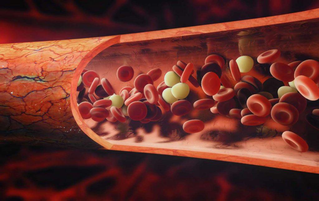 hemorroides sintomas en mujeres