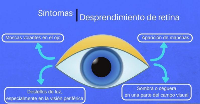 sintomas de desprendimiento de retina en adultos