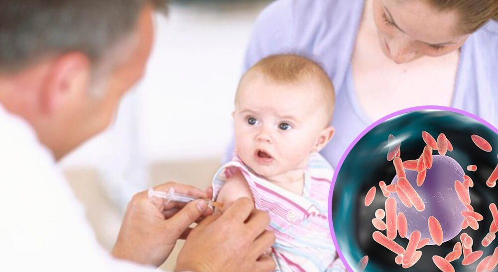 sintomas tos ferina infantil