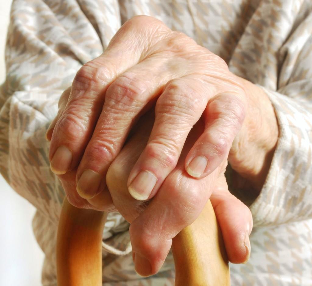 artrosis síntomas y tratamiento