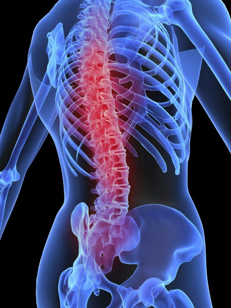 artrosis sintomas iniciales
