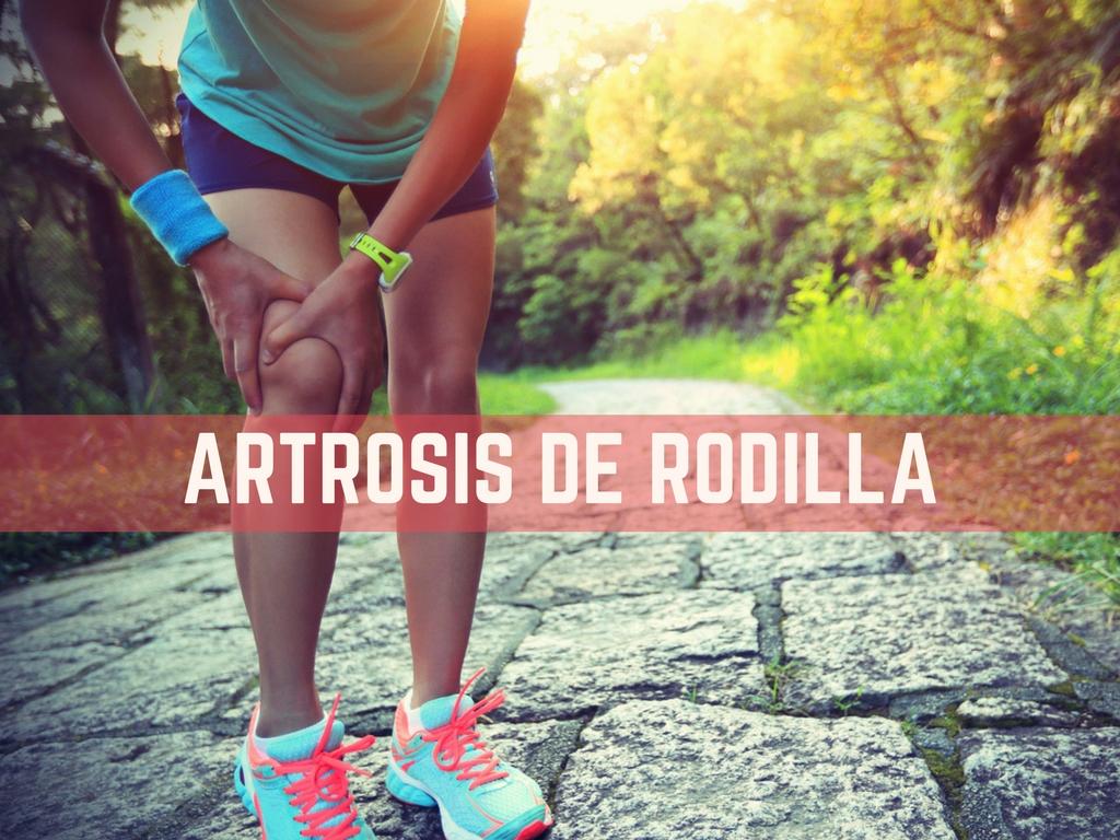 artrosis sintomas causas y tratamiento