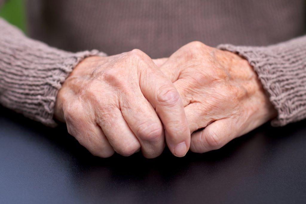artrosis síntomas iniciales