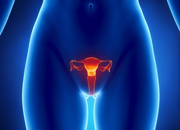 cáncer de ovarios síntomas iniciales