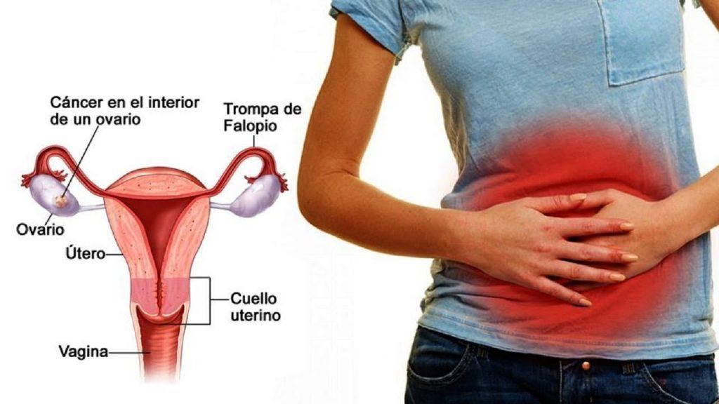 cáncer de ovario síntomas y signos