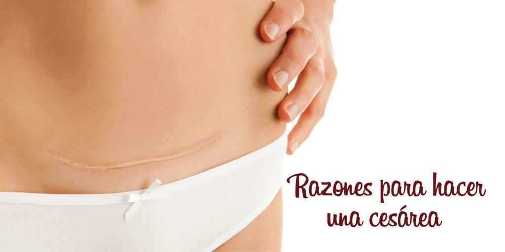 sintomas de parto cesarea