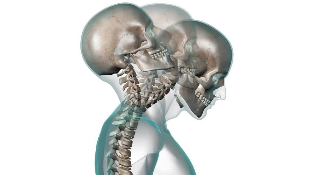 sintomas cervicales cargadas