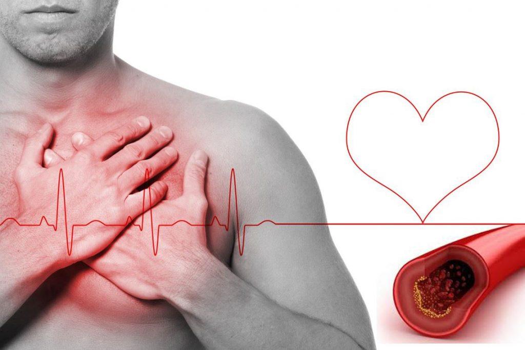 colesterol alto sintomas fisicos