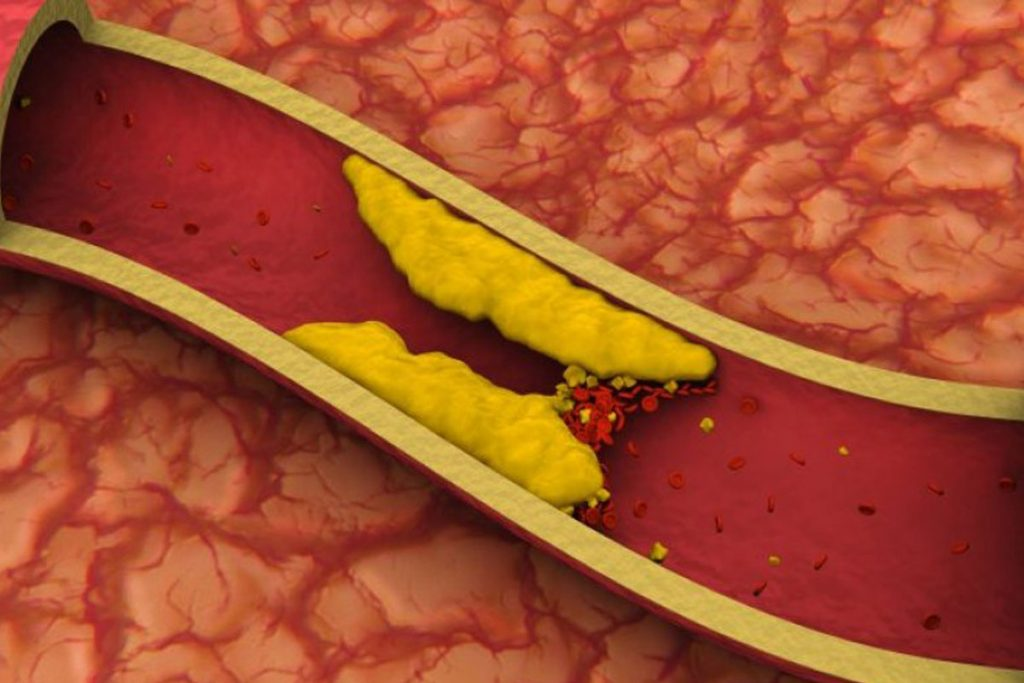 sintomas de colesterol alto em adultos