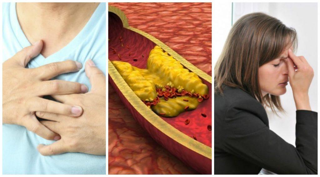 colesterol alto e triglicérides alto sintomas