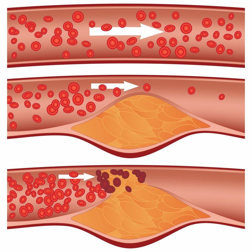 sintomas de colesterol alto en adultos mayores