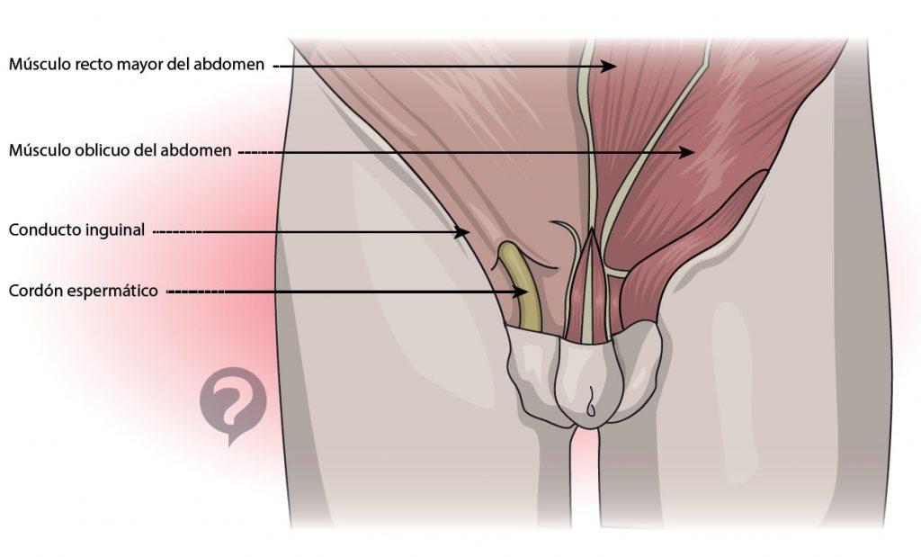 sintomas hernias inguinales adultos