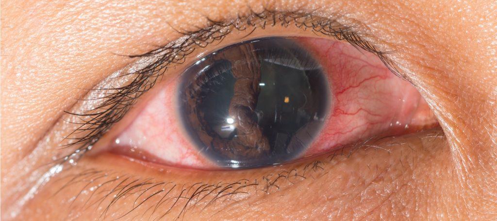sintomas de posible desprendimiento de retina