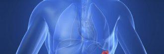 Colitis ulcerosa síntomas