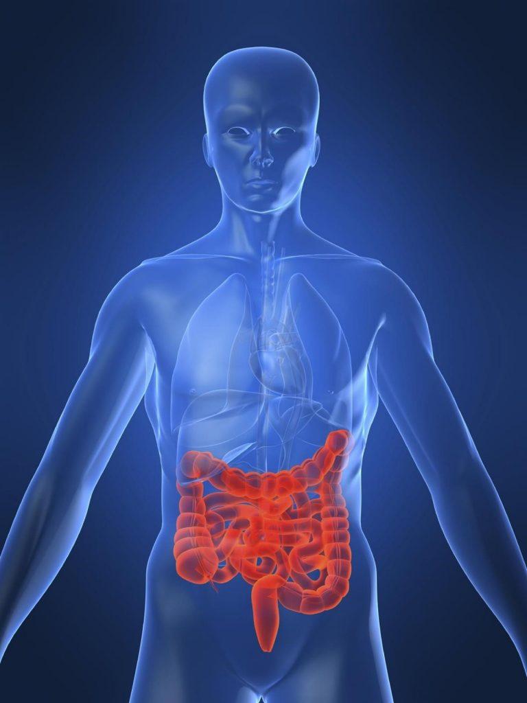 sintomas colitis ulcerosa en niños