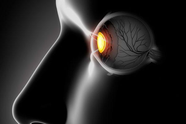 sintomas de desprendimiento de retina causas