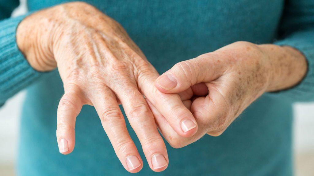 artrosis sintomas rodilla