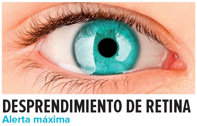 desprendimiento de retina causas sintomas y tratamiento