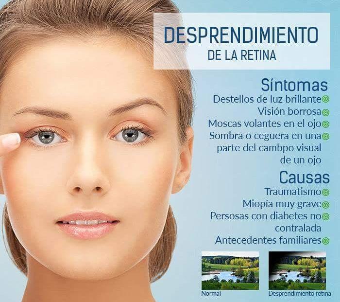 causas y sintomas de desprendimiento de retina