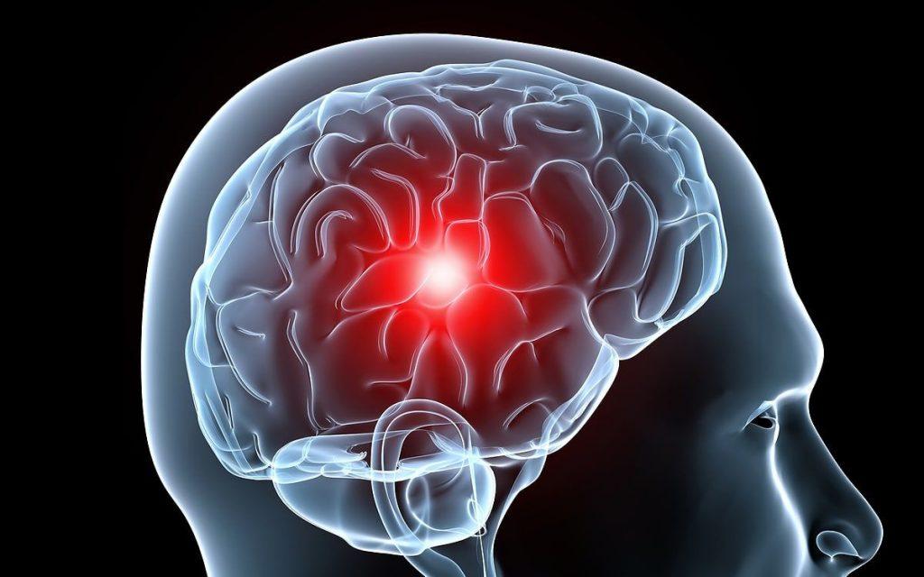 migraña sintomas y signos