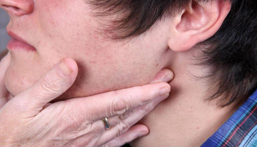 sintomas otitis externa aguda