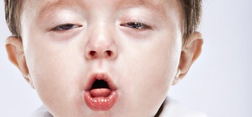 sintomas de un bebe con tos ferina