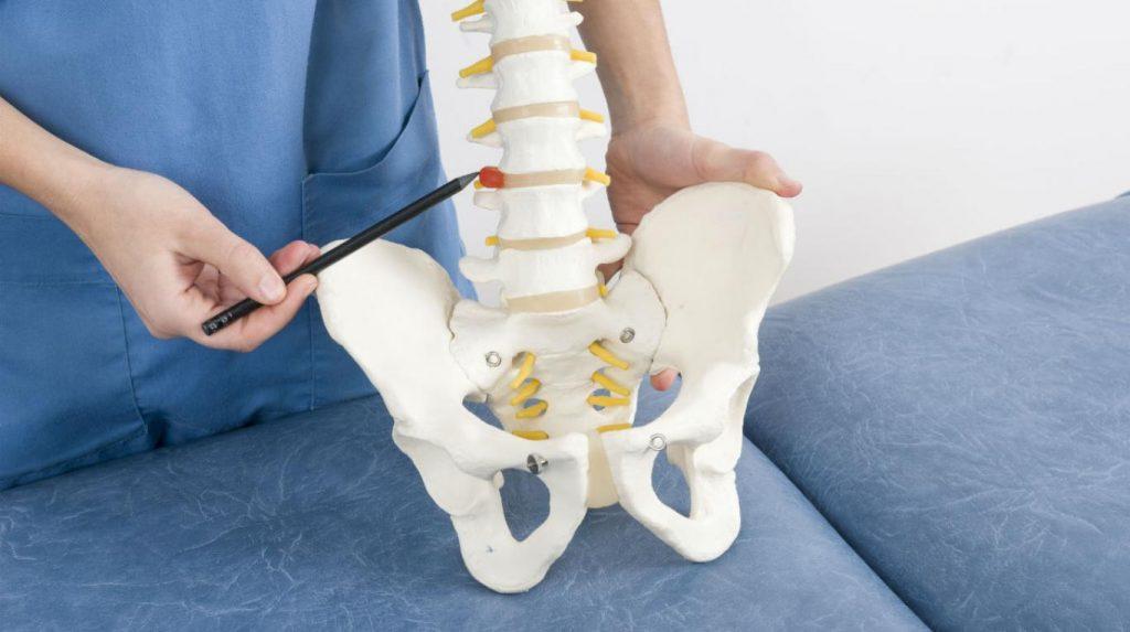 sintomas hernia discal cervical