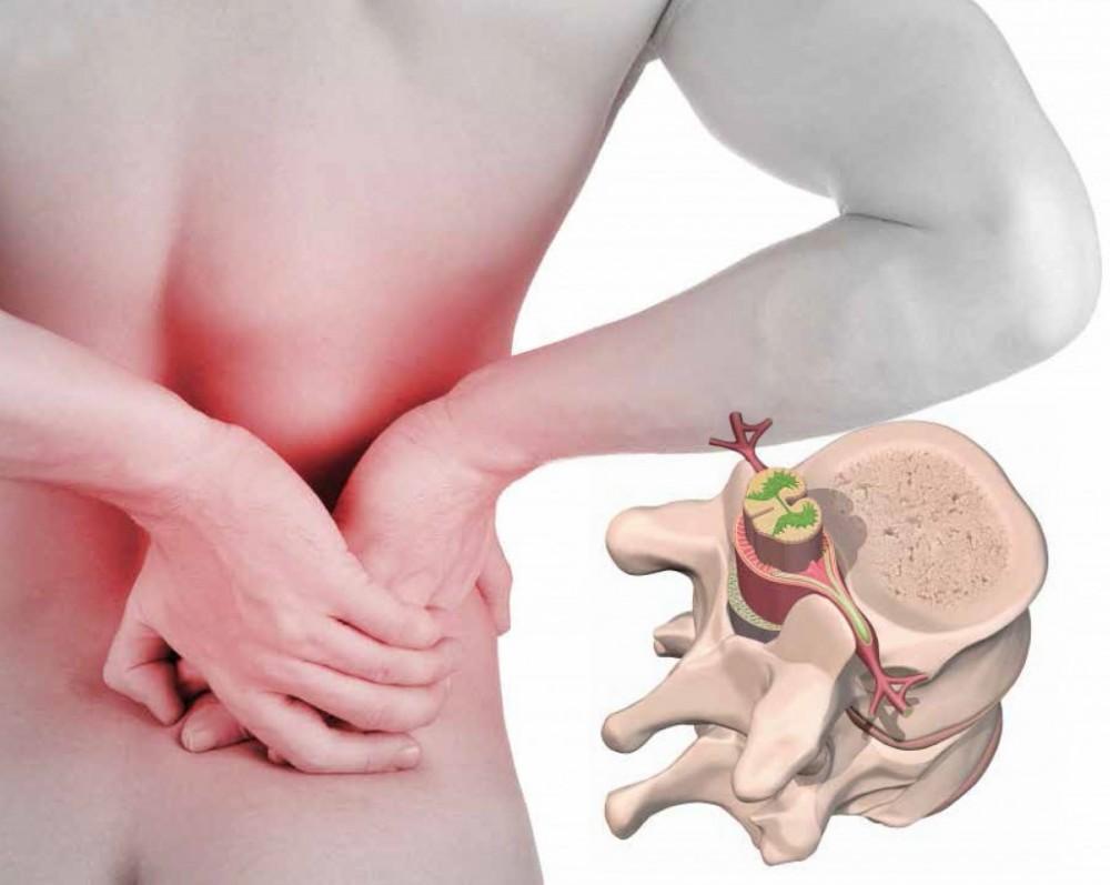 sintomas hernia discal l4 l5