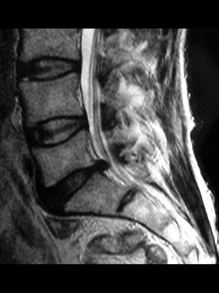 síntomas hernia discal cervical