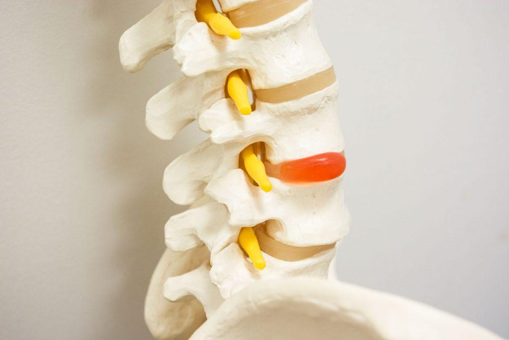 hernia discal espalda alta sintomas