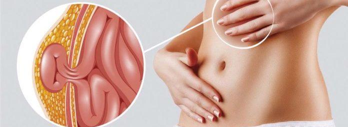 síntomas de hernia inguinal en las mujeres