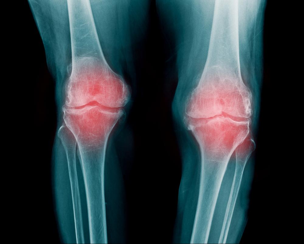 artrosis en adolescentes sintomas